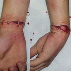 手腕上的缝合伤口纹身图案