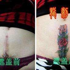 女性剖腹产疤痕玫瑰花图案遮盖纹身